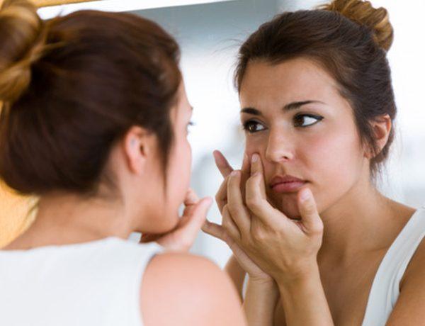 ¿Problemas de acné? Descubre lo que los granitos dicen de tu salud